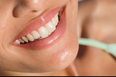 Teeth-whitening1